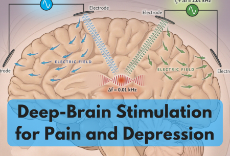 Deep-Brain Stimulation for Pain and Depression