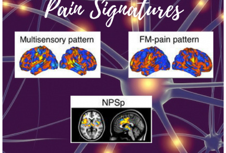 Differences in brain activity among individuals with fibromyalgia and normal controls