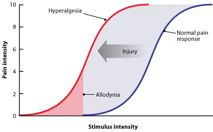 Graph showing the relationship between pain intensity and stimulus intensity. Allodynia occurs when the stimulus is weaker and hyperalgesia when the stimulus is stronger